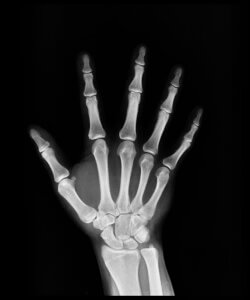 Australian Federal Police (AFP) used controversial wrist x-rays to determine age
